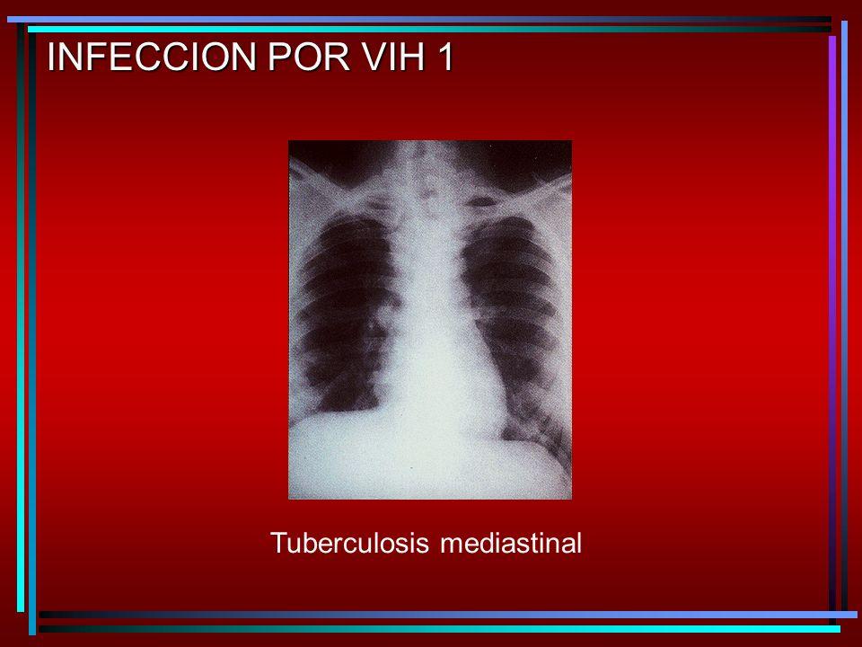 INFECCION POR VIH 1 Tuberculosis mediastinal