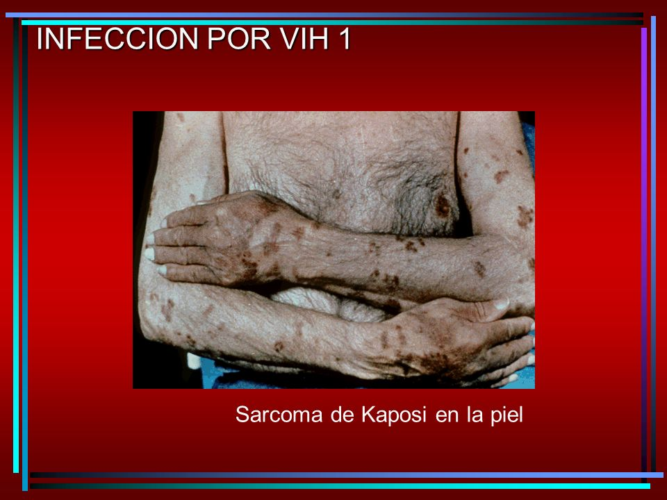 INFECCION POR VIH 1 Sarcoma de Kaposi en la piel