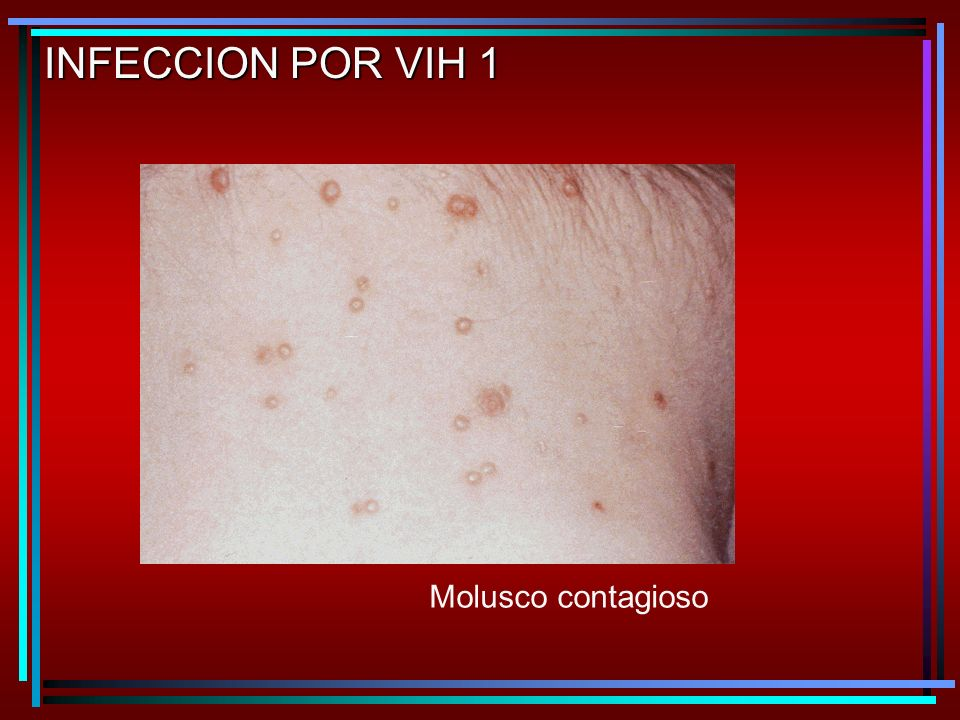 INFECCION POR VIH 1 Molusco contagioso