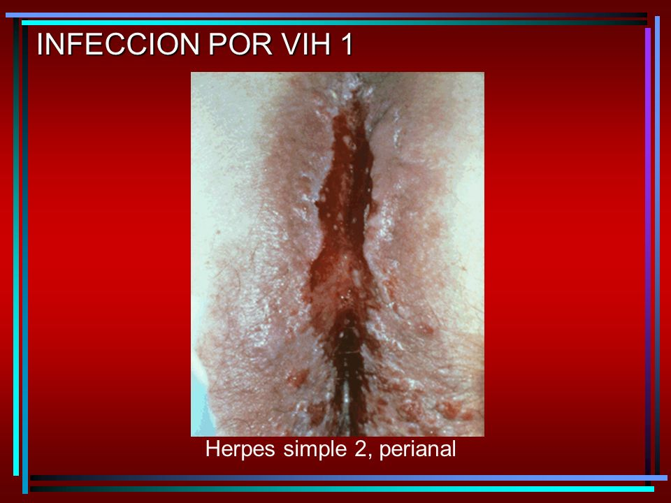 INFECCION POR VIH 1 Herpes simple 2, perianal