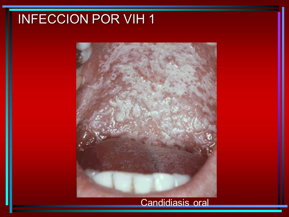 INFECCION POR VIH 1 Candidiasis oral