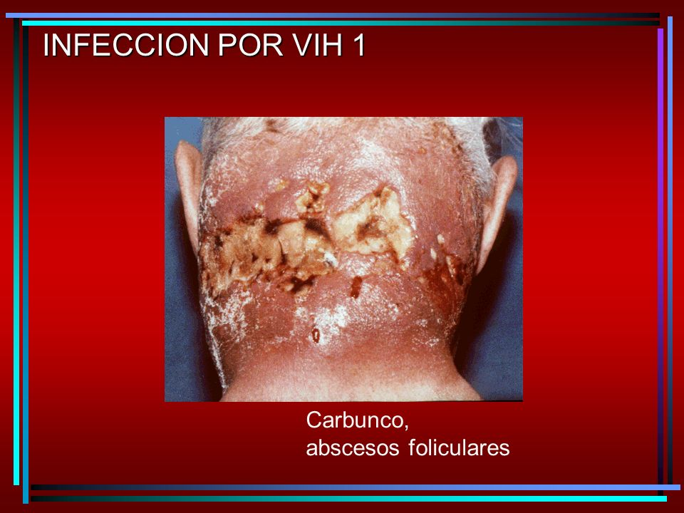 INFECCION POR VIH 1 Carbunco, abscesos foliculares
