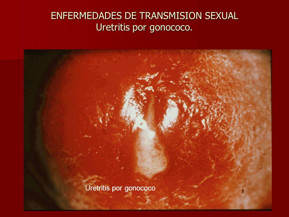 ENFERMEDADES DE TRANSMISION SEXUAL Uretritis por gonococo.