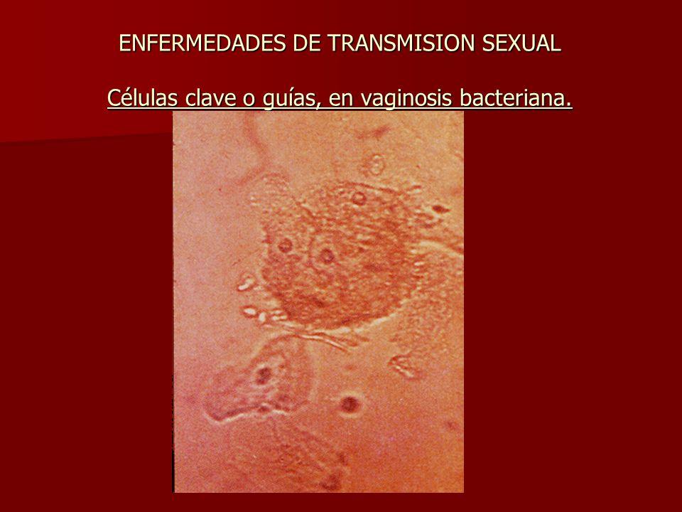 ENFERMEDADES DE TRANSMISION SEXUAL Células clave o guías, en vaginosis bacteriana.