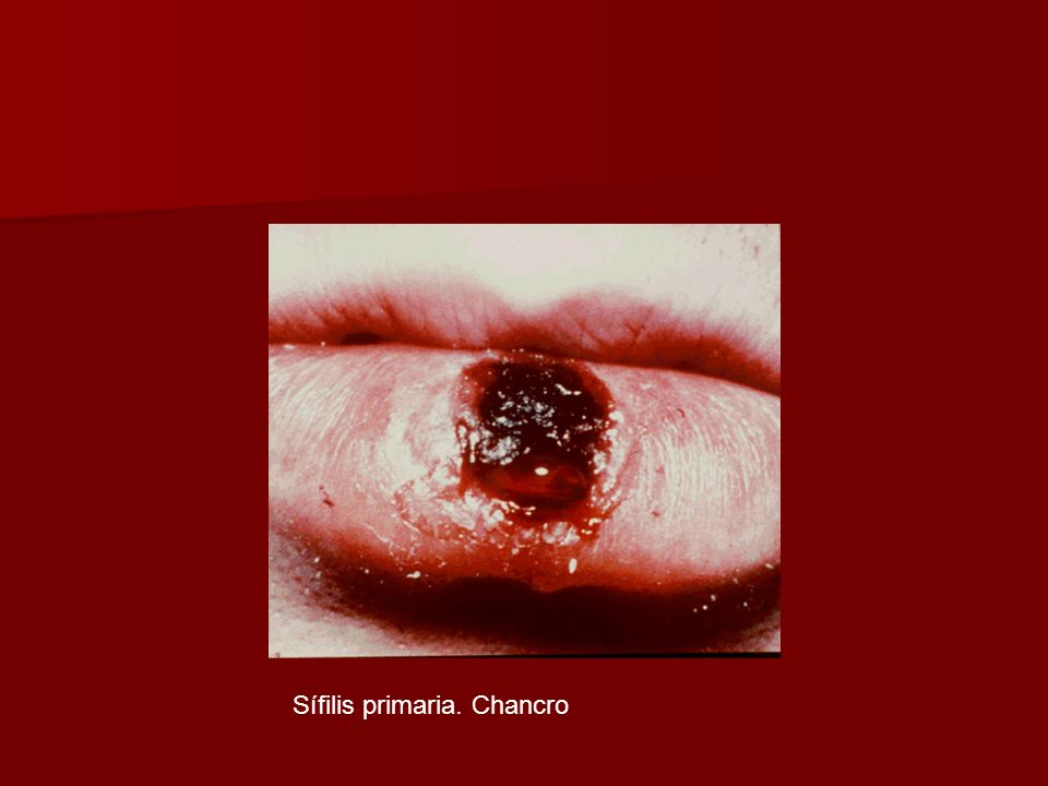 Sífilis primaria. Chancro