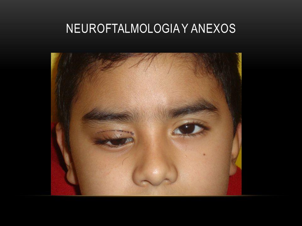 Neuroftalmologia y anexos