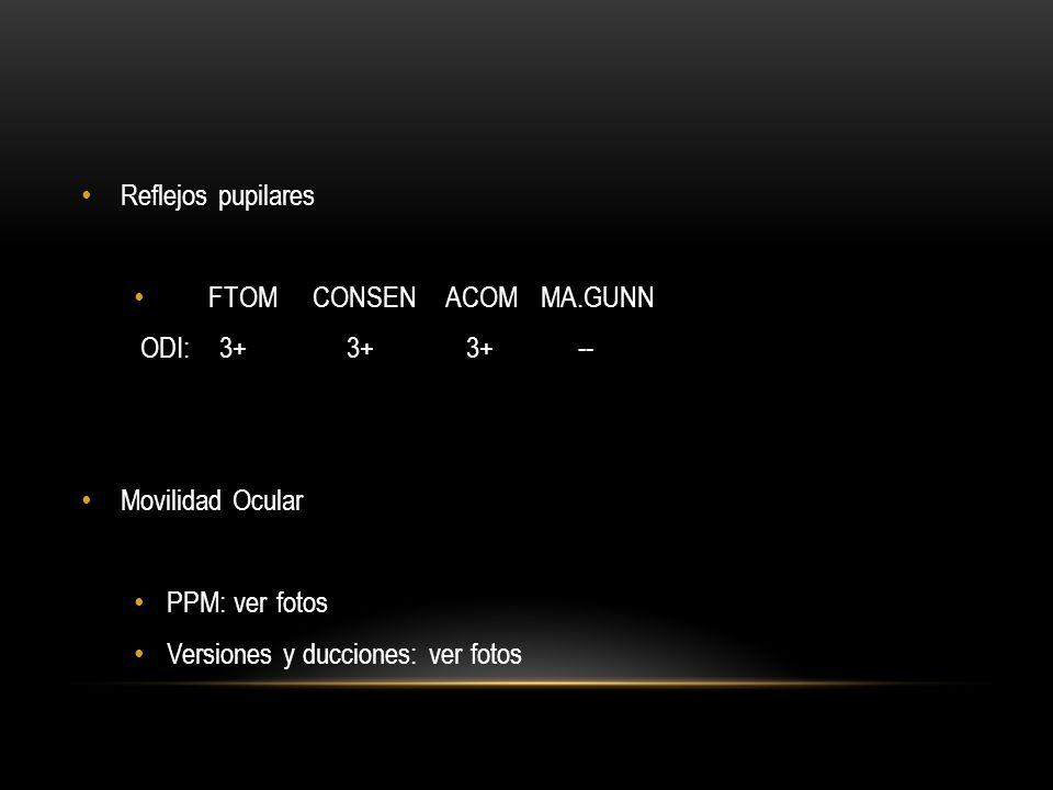 Reflejos pupilares FTOM CONSEN ACOM MA.GUNN. ODI: 3+ 3+ 3+ --