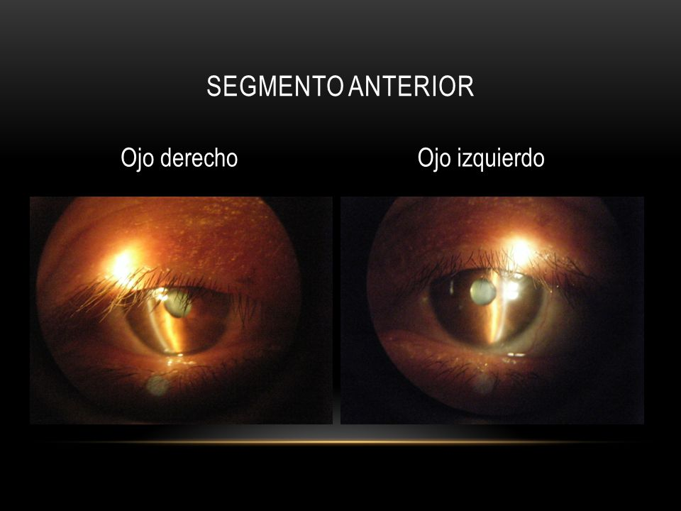 Segmento anterior Ojo derecho Ojo izquierdo