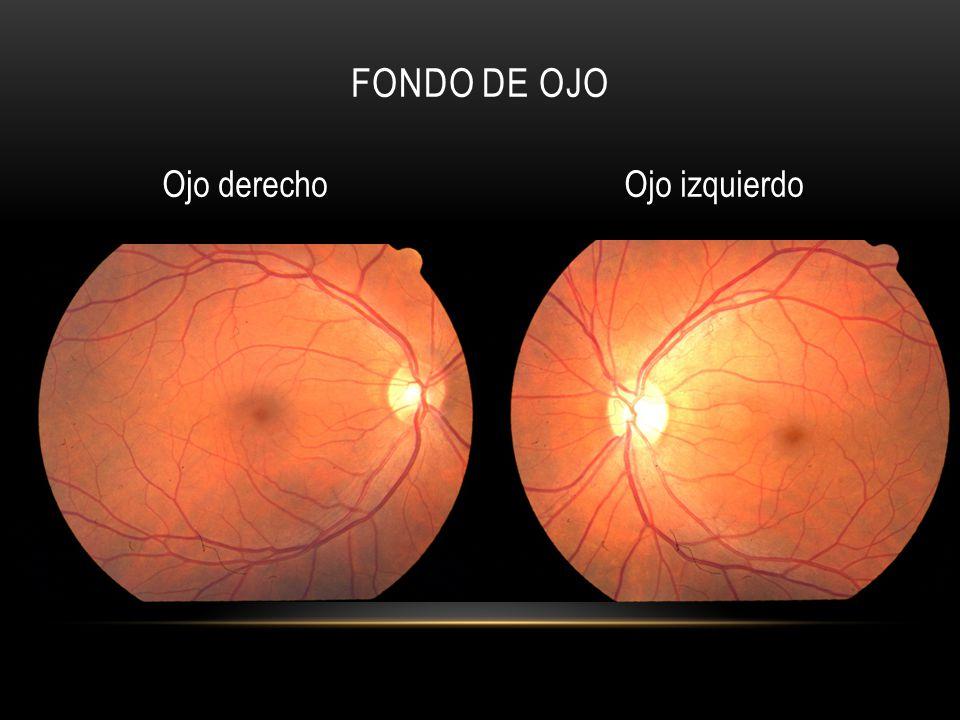 Fondo de ojo Ojo derecho Ojo izquierdo