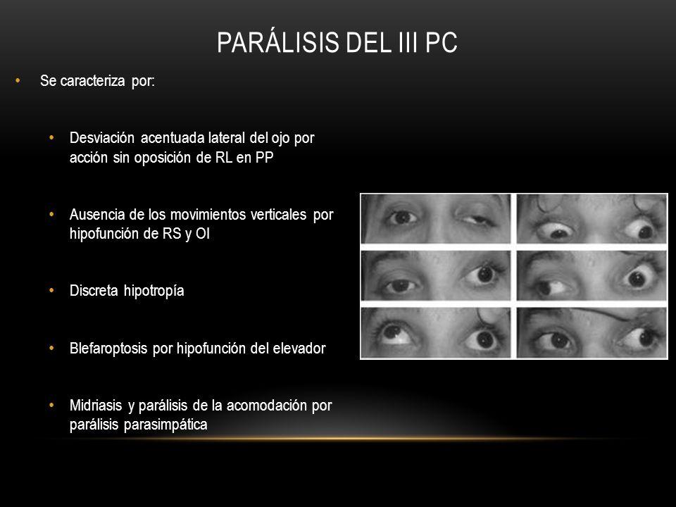 Parálisis del III PC Se caracteriza por: