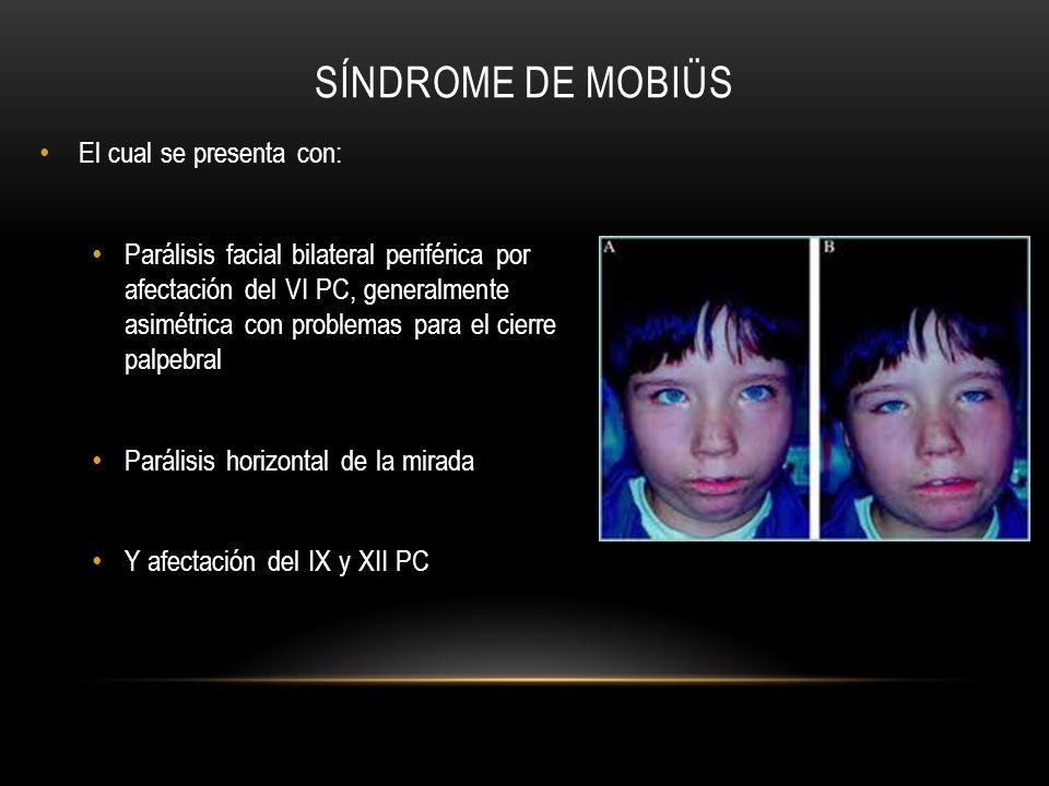 Síndrome de Mobiüs El cual se presenta con: