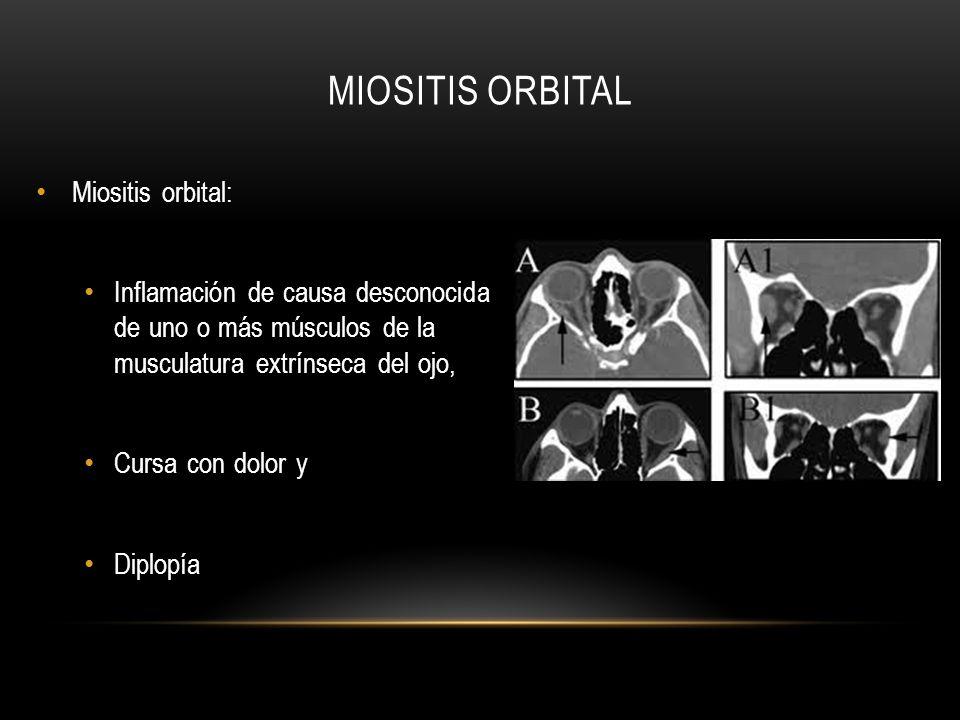 Miositis orbital Miositis orbital: