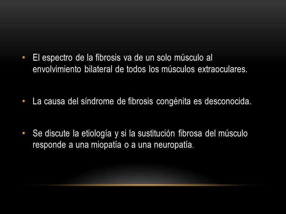 El espectro de la fibrosis va de un solo músculo al envolvimiento bilateral de todos los músculos extraoculares.