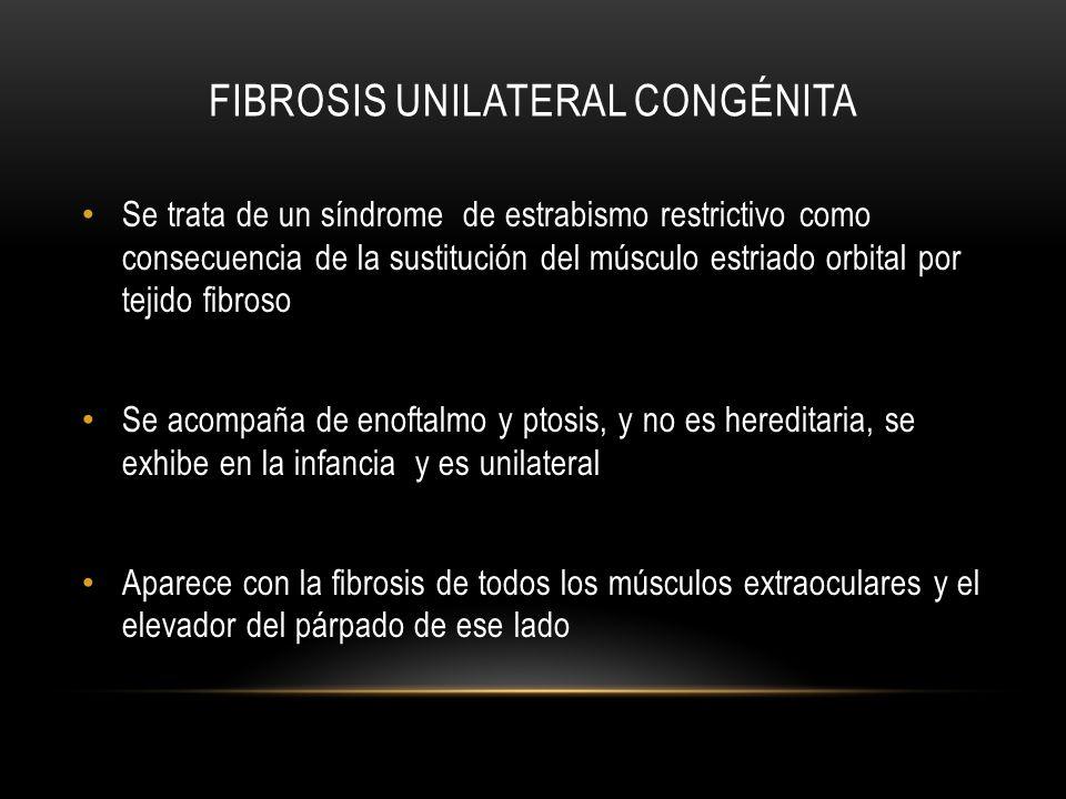 Fibrosis unilateral congénita