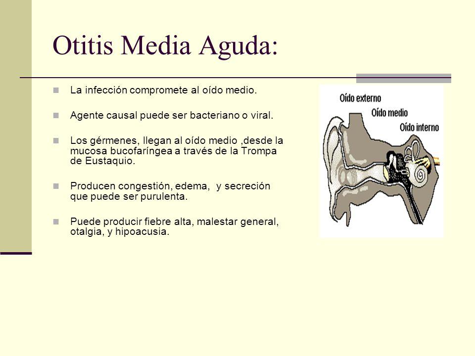 Otitis Media Aguda: La infección compromete al oído medio.