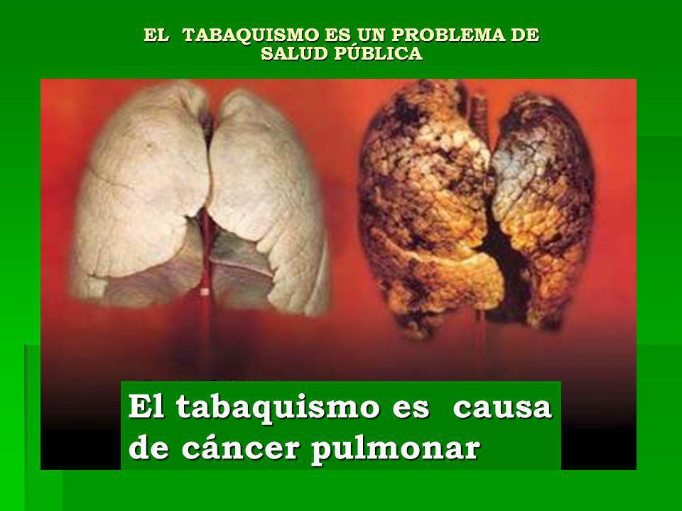 EL TABAQUISMO ES UN PROBLEMA DE SALUD PÚBLICA