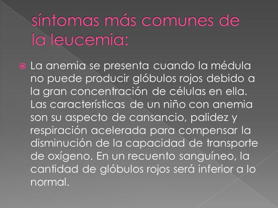 síntomas más comunes de la leucemia: