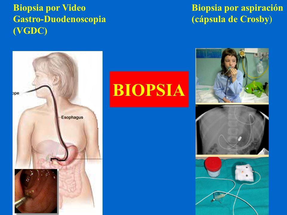 BIOPSIA Biopsia por Video Gastro-Duodenoscopia (VGDC)