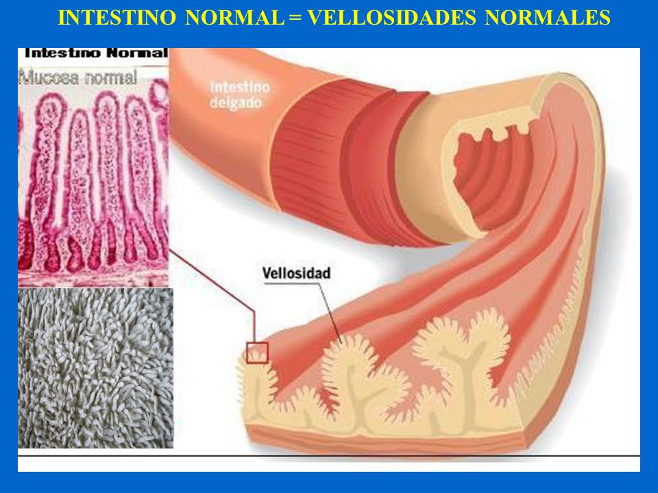 INTESTINO NORMAL = VELLOSIDADES NORMALES