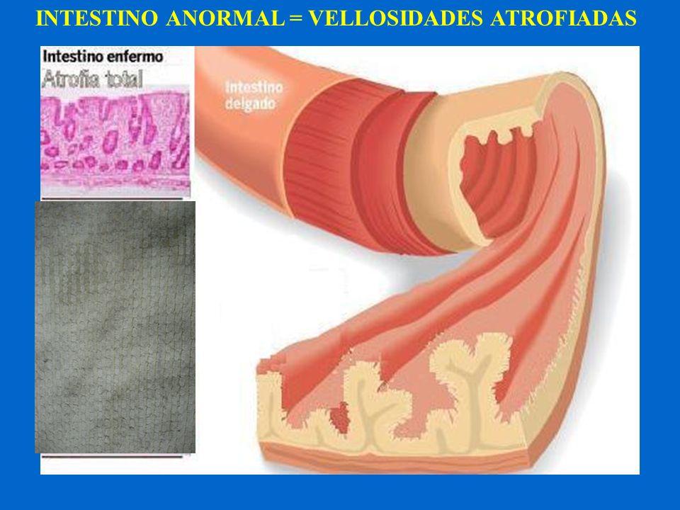 INTESTINO ANORMAL = VELLOSIDADES ATROFIADAS