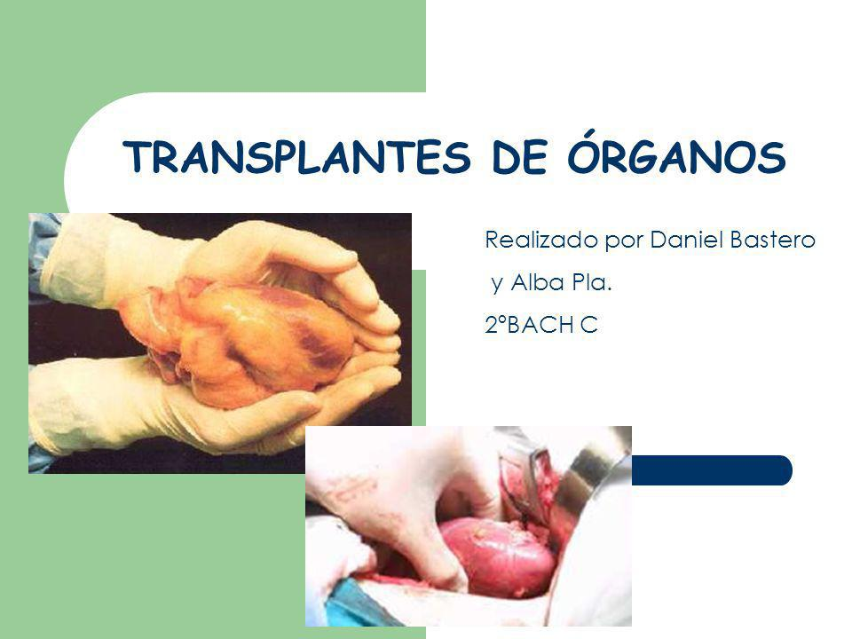TRANSPLANTES DE ÓRGANOS