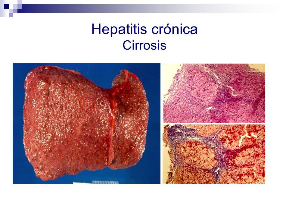Hepatitis crónica Cirrosis