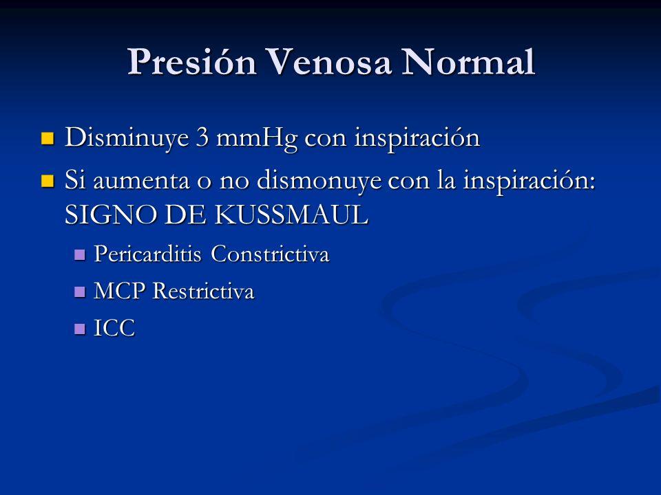 Presión Venosa Normal Disminuye 3 mmHg con inspiración
