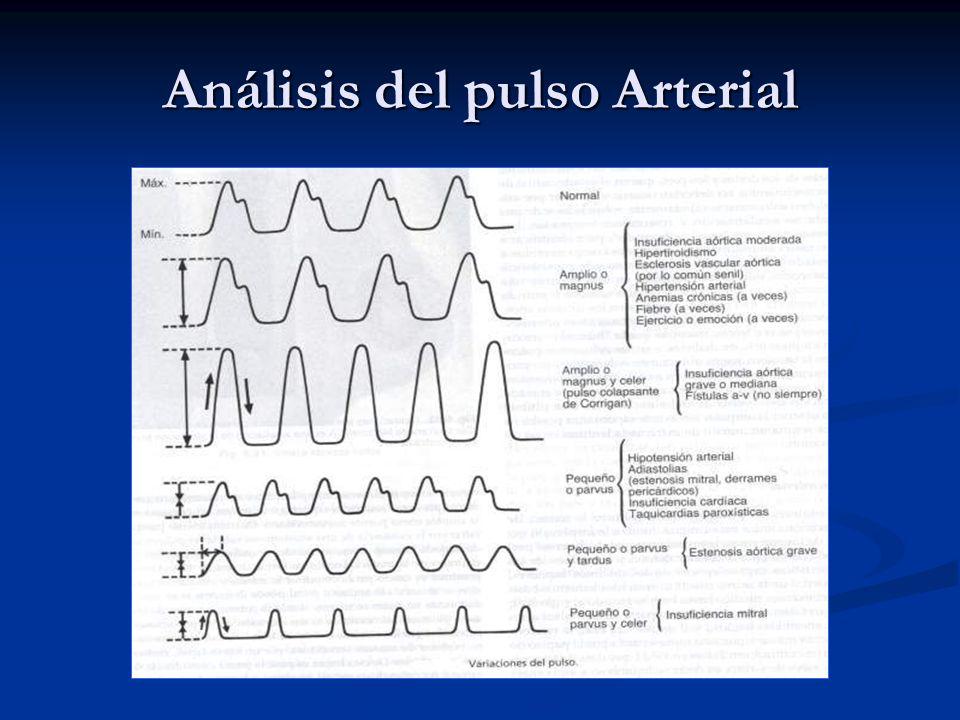 Análisis del pulso Arterial