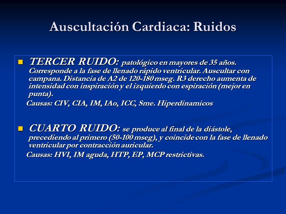 Auscultación Cardiaca: Ruidos