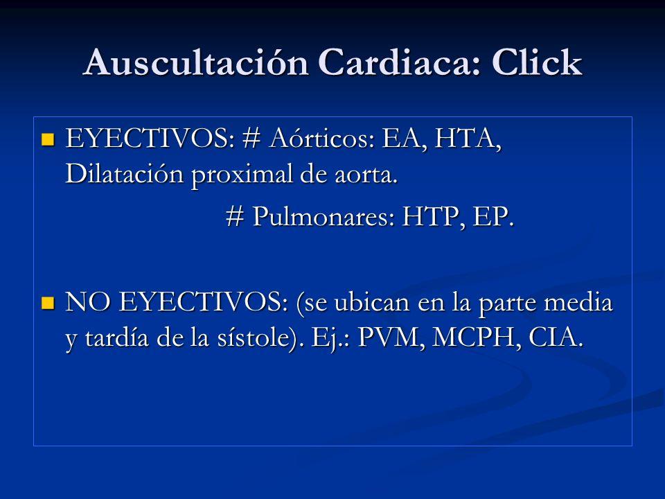 Auscultación Cardiaca: Click