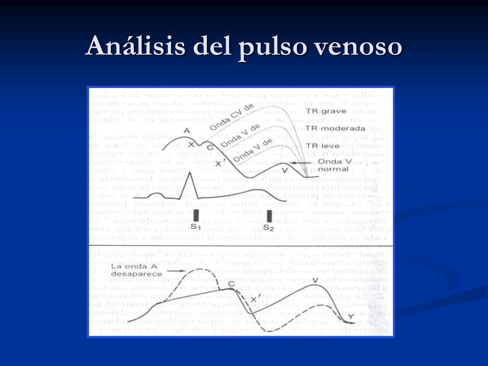 Análisis del pulso venoso