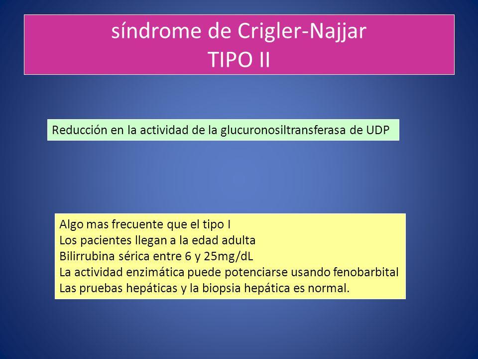 síndrome de Crigler-Najjar TIPO II