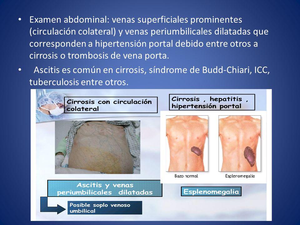 Examen abdominal: venas superficiales prominentes (circulación colateral) y venas periumbilicales dilatadas que corresponden a hipertensión portal debido entre otros a cirrosis o trombosis de vena porta.