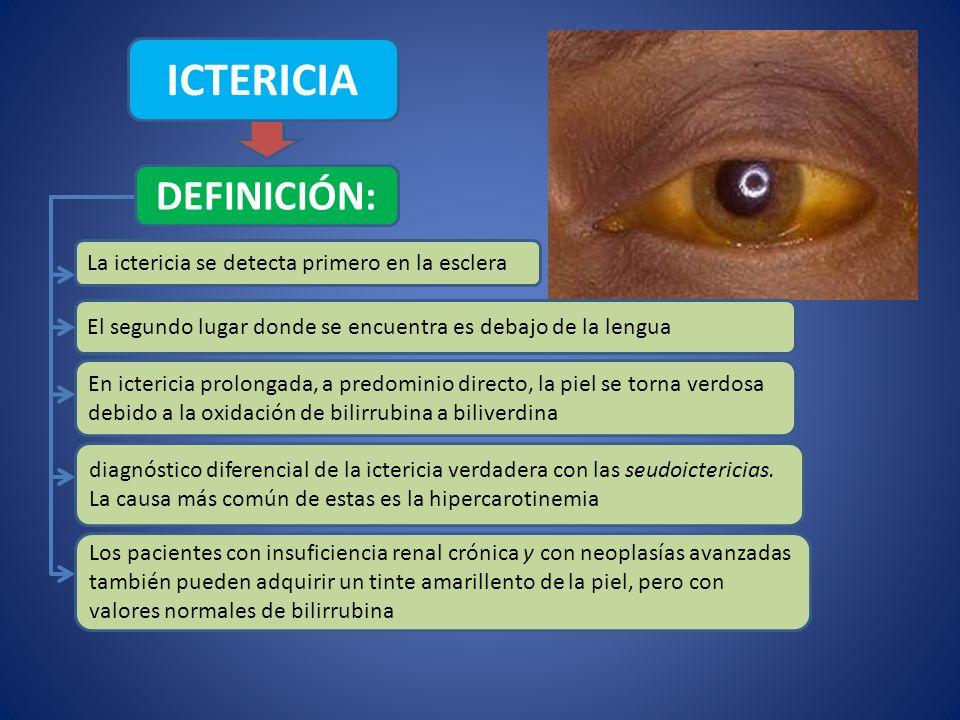 ICTERICIA DEFINICIÓN: La ictericia se detecta primero en la esclera