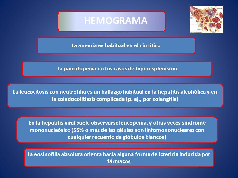 HEMOGRAMA La anemia es habitual en el cirrótico