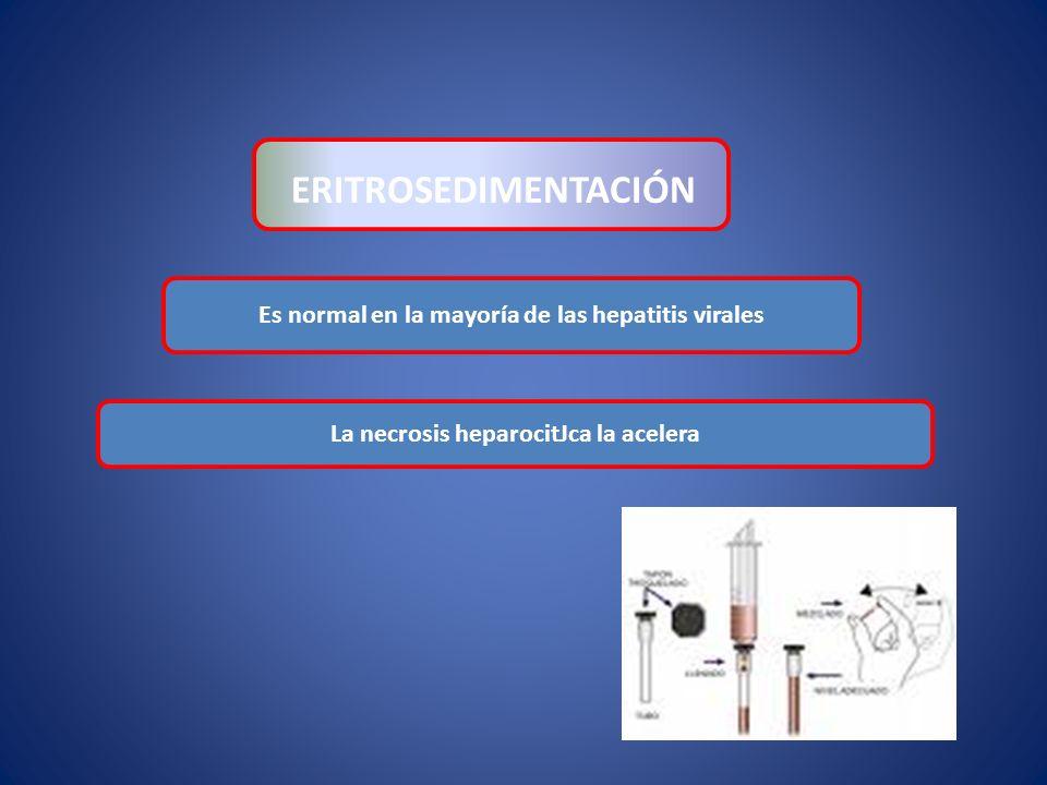 ERITROSEDIMENTACIÓN Es normal en la mayoría de las hepatitis virales