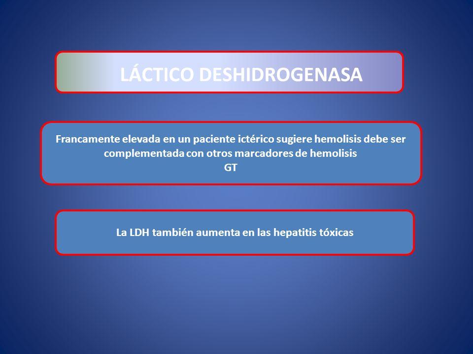 LÁCTICO DESHIDROGENASA