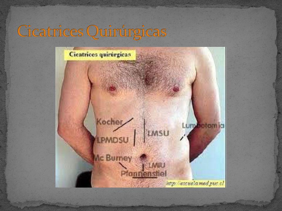 Cicatrices Quirúrgicas