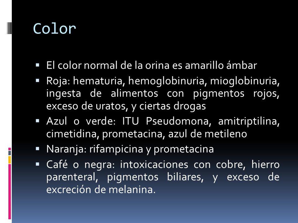 Color El color normal de la orina es amarillo ámbar