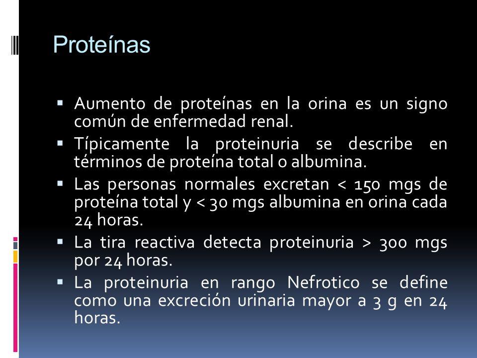 Proteínas Aumento de proteínas en la orina es un signo común de enfermedad renal.