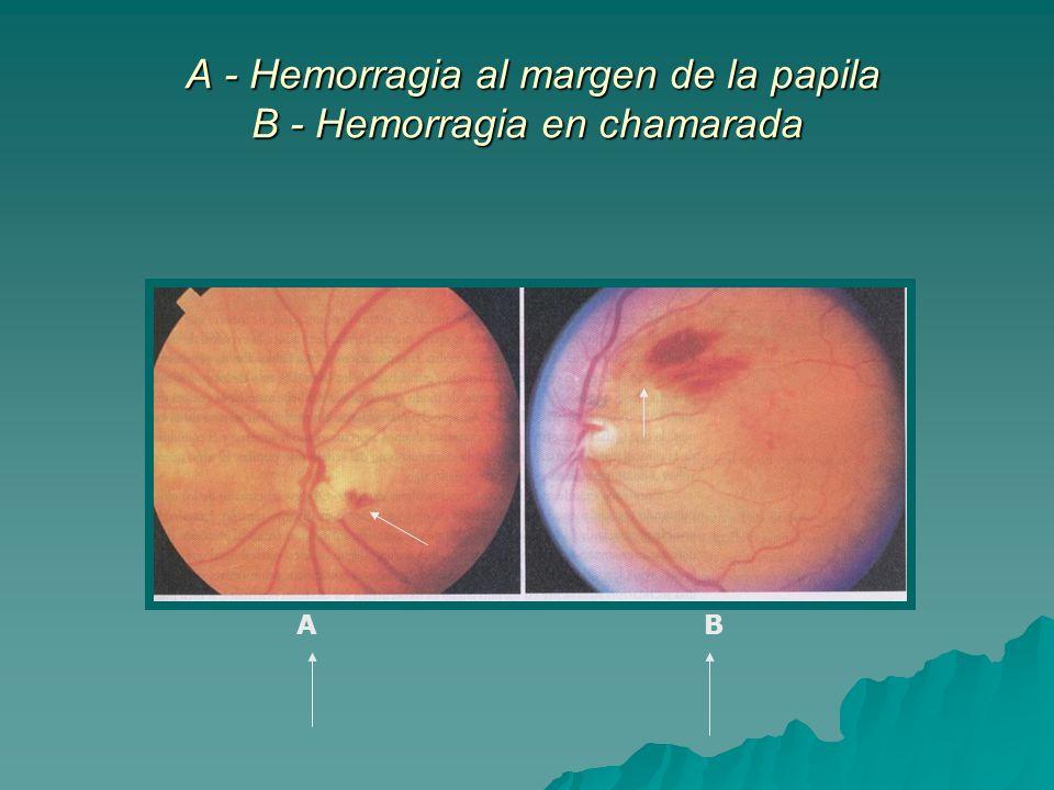 A - Hemorragia al margen de la papila B - Hemorragia en chamarada
