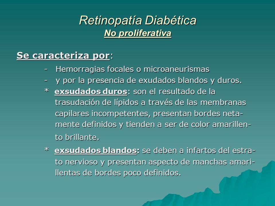 Retinopatía Diabética No proliferativa