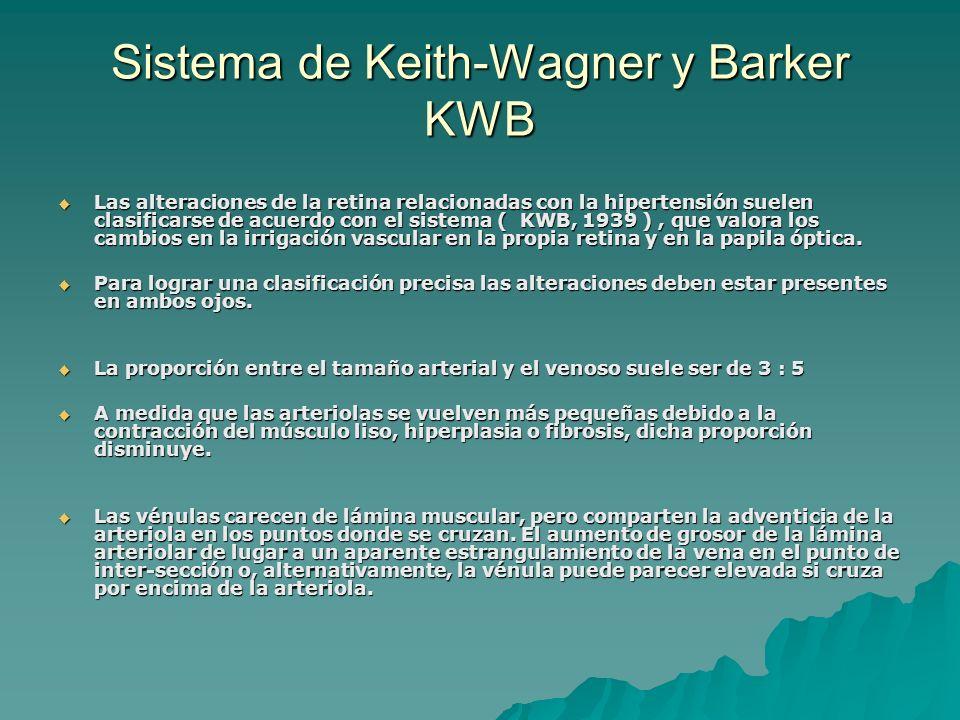 Sistema de Keith-Wagner y Barker KWB