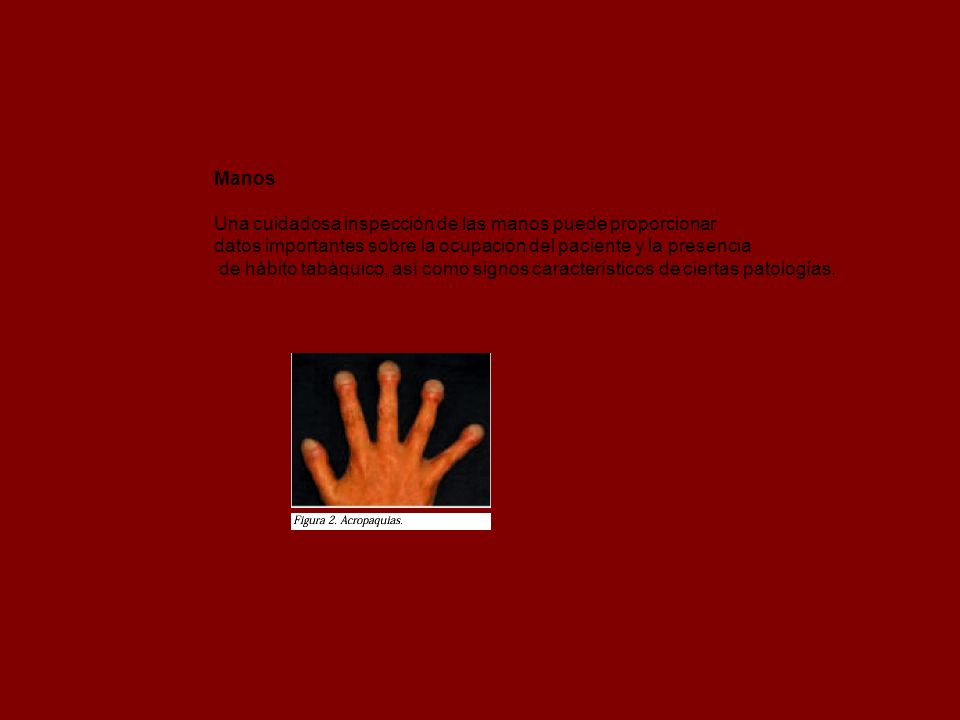 Manos Una cuidadosa inspección de las manos puede proporcionar