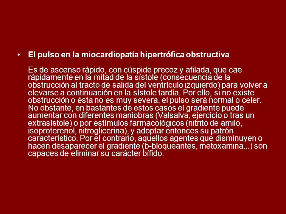 El pulso en la miocardiopatía hipertrófica obstructiva Es de ascenso rápido, con cúspide precoz y afilada, que cae rápidamente en la mitad de la sístole (consecuencia de la obstrucción al tracto de salida del ventrículo izquierdo) para volver a elevarse a continuación en la sístole tardía.
