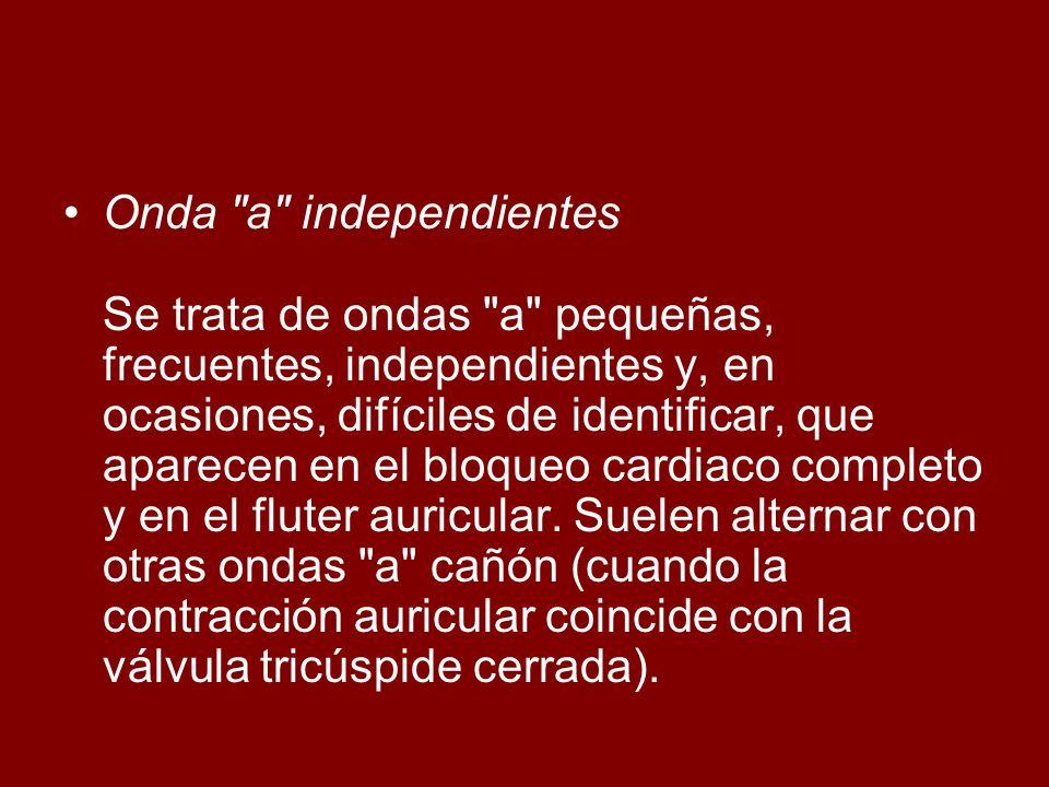 Onda a independientes Se trata de ondas a pequeñas, frecuentes, independientes y, en ocasiones, difíciles de identificar, que aparecen en el bloqueo cardiaco completo y en el fluter auricular.