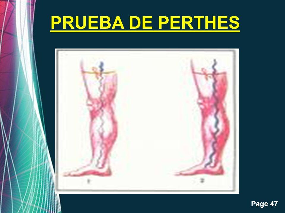 PRUEBA DE PERTHES