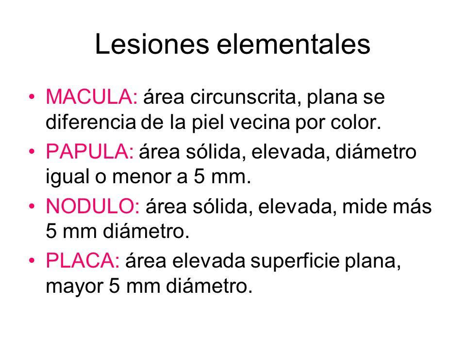 Lesiones elementales MACULA: área circunscrita, plana se diferencia de la piel vecina por color.