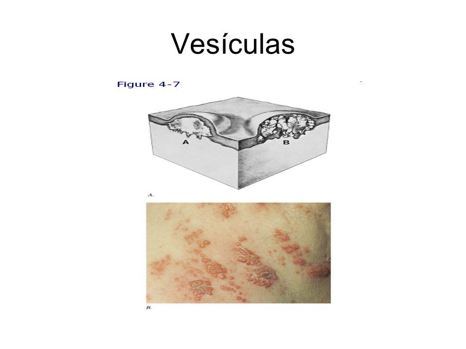 Vesículas