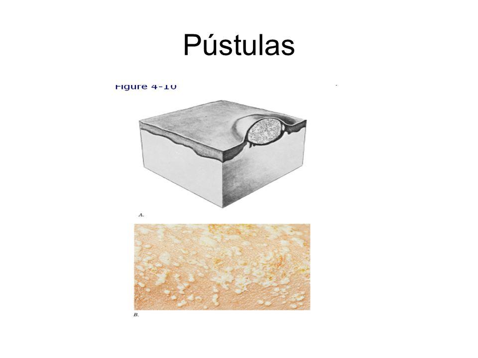 Pústulas